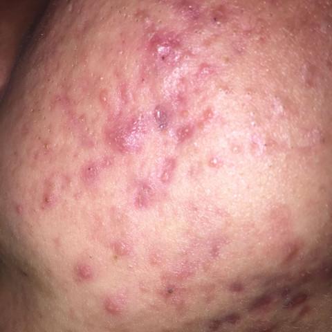 Das ist meine Haut im Gesicht. Was tun? Hilfe gesucht!! Hautarzt? Therapie? - (Haut, Pickel, Akne)