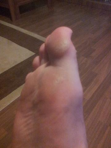 Fuß - (Medizin, Arzt, Haut)