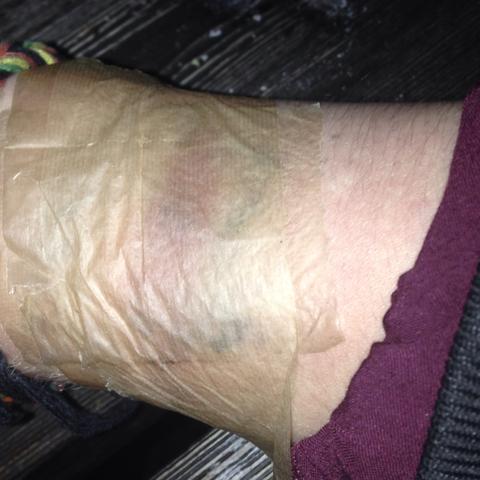 oberarm tattoo bekifft aus versehen - (Tattoo, selbstgestochen)