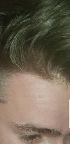 - (Haare, Gesundheit und Medizin, Leben)