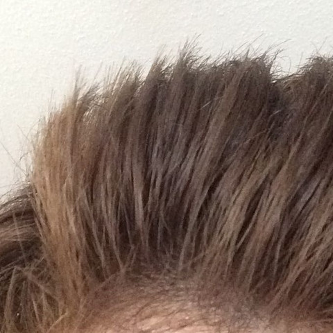 Haarausfall  - (Angst, Haarausfall)