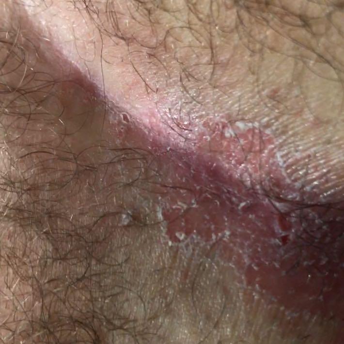 Ist Das Hautpilz Am Stei Bein Gesundheit Und Medizin
