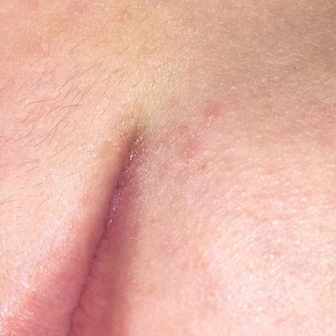 Herpesbläschen - (Krankheit, Virus, Mund)
