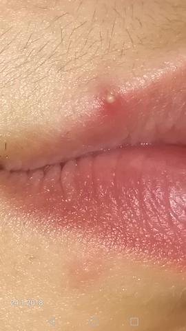 Scheide herpes an pickel oder der Herpes