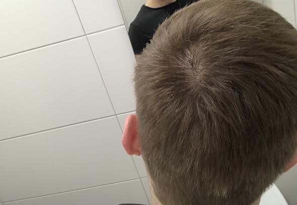 Ist Das Hier Ein Haarwirbel Oder Der Haarausfall Haare