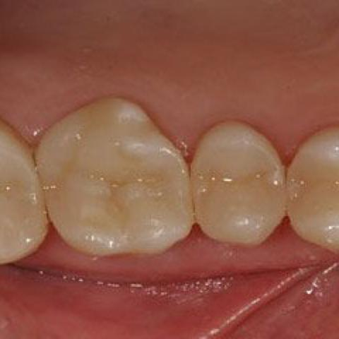 Zähne, nicht meine - (Karies, 11 Jahre)