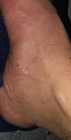 Krätze Fuß