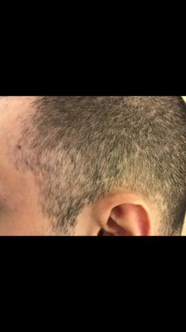 Ist das Kreisrunder Haarausfall  (mit Bilder)?