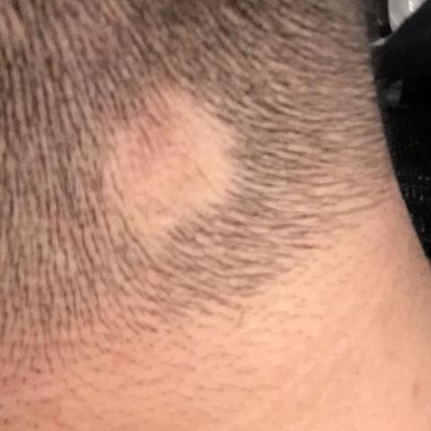Kreisrunder Haarausfall ?  - (Gesundheit, Haare, Stress)
