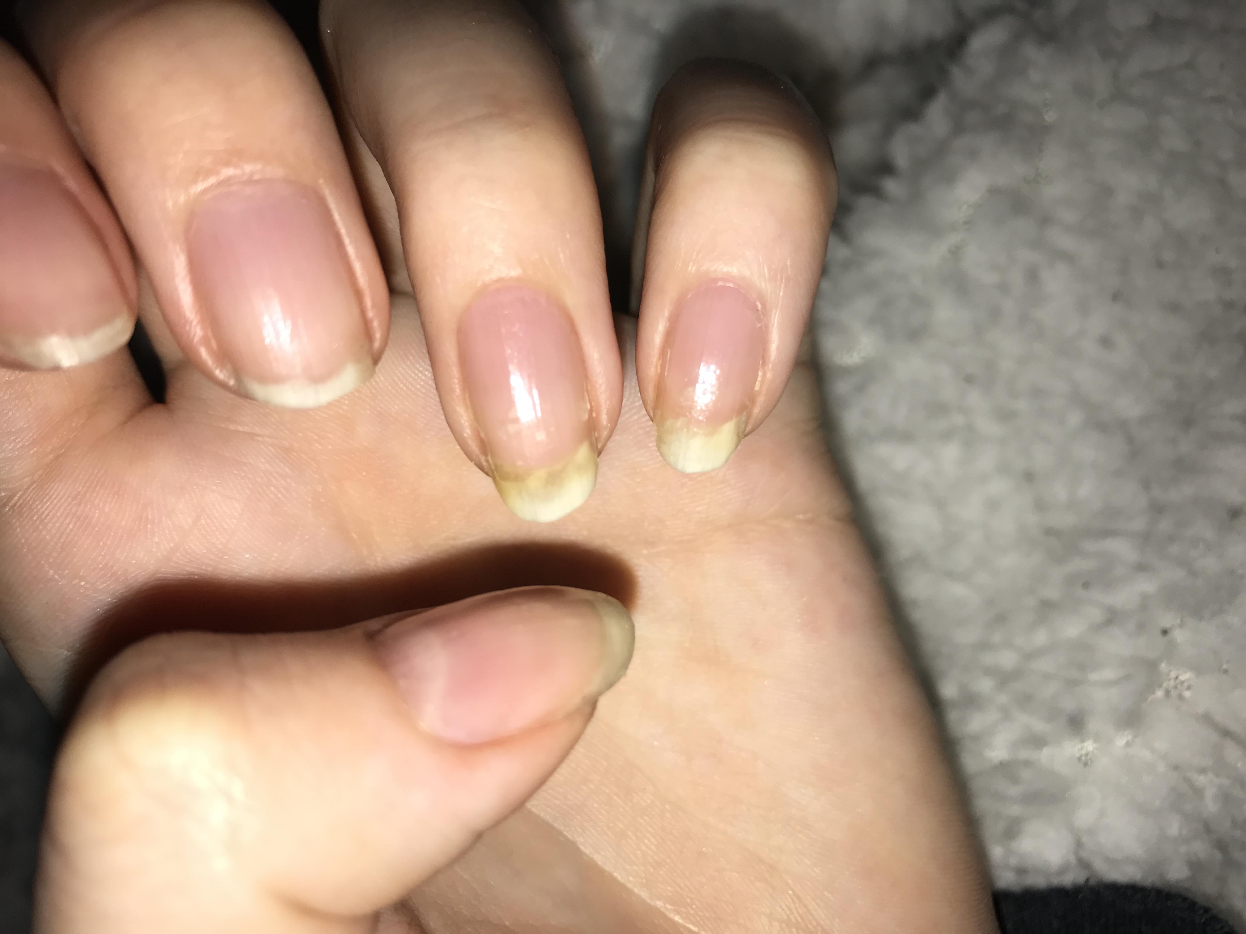 Ist das nagelpilz oder eine Verfärbung ? (Nägel)