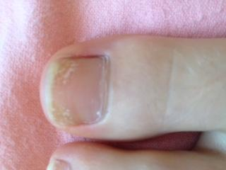 Großer Zeh - (nagelpilz, zehennagel)