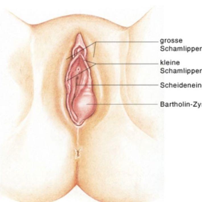 Die Operation der Prostata und die Potenz