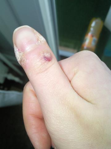 - (Haut, Finger, Warzen)