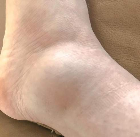 Ist das normal dass ihr Fuß wieder anschwillt?
