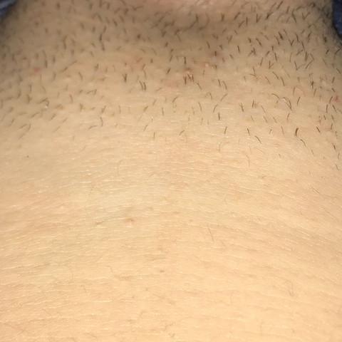 Normal? - (rasieren, normal)