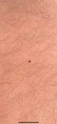 - (Haut, Krebs, Hautkrebsvorsorge)
