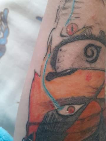 Ist das Tattoo vernarbt an der stelle?