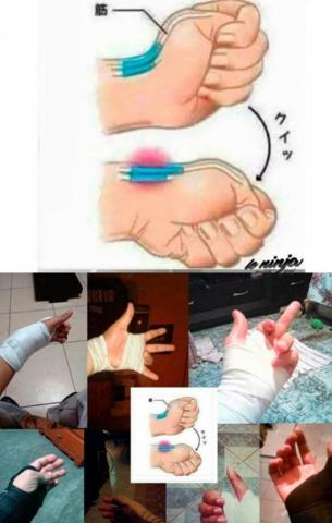 hand - (Hand, brechen, tendon)