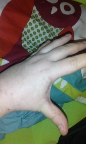 Hand - (Haut, Neurodermitis)
