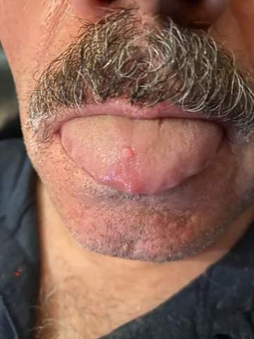 Ist der Knubbel auf meiner Zunge gefährlich?