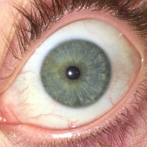 Ist das ein Kayser Fleischer Ring?  - (Augen, Neurologie, Stoffwechsel)