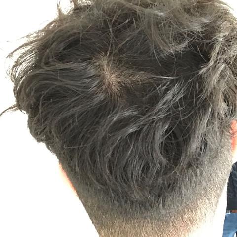 Ist Dies Ein Zeichen Für Haarausfall Haare
