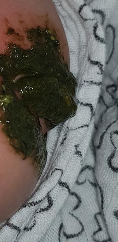 Ist Diese Stuhlfarbe Normal Säugling Baby Hebamme Kinderarzt