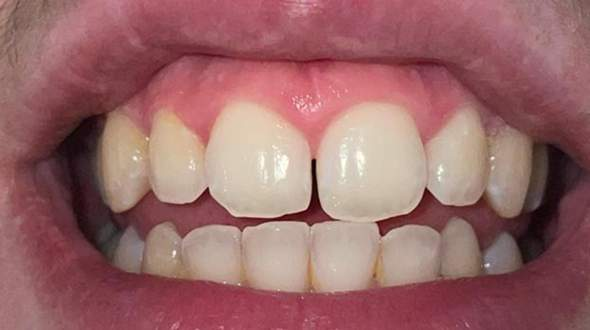 Ist diese Zahnlücke zwischen den Schneidezähnen okay und vllt auch gesund oder unnormal?