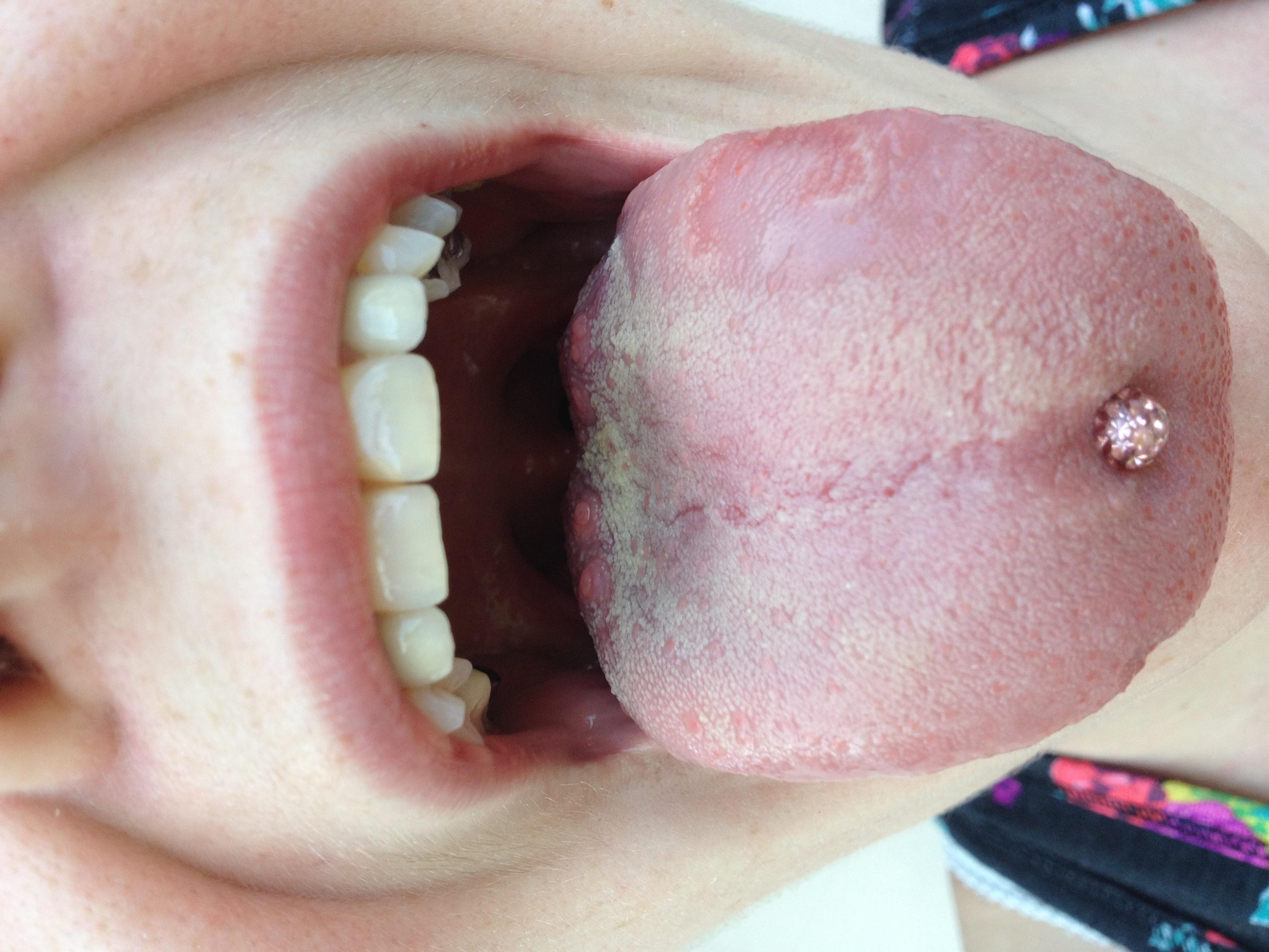 Ist dieser Belag normal auf Zunge? (Mund)