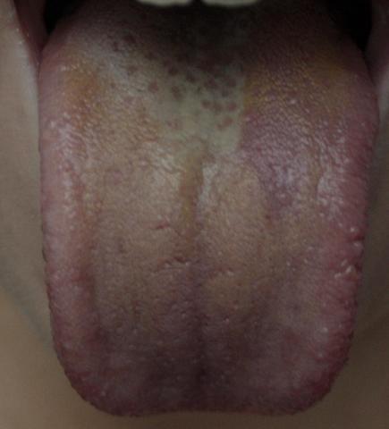Zungenbelag Diagnose Bilder