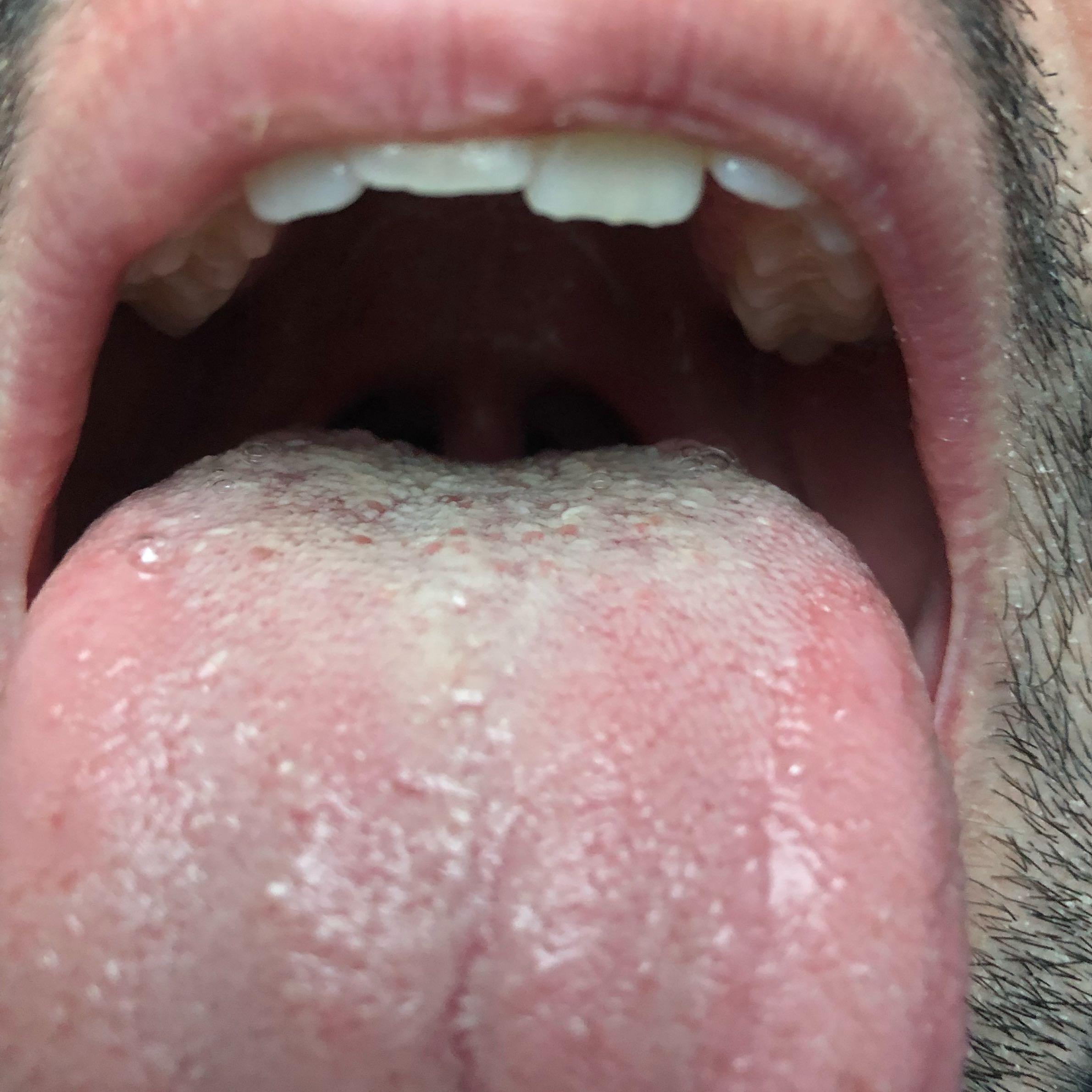 Ist dieser Zungenbelag normal? (Gesundheit und Medizin