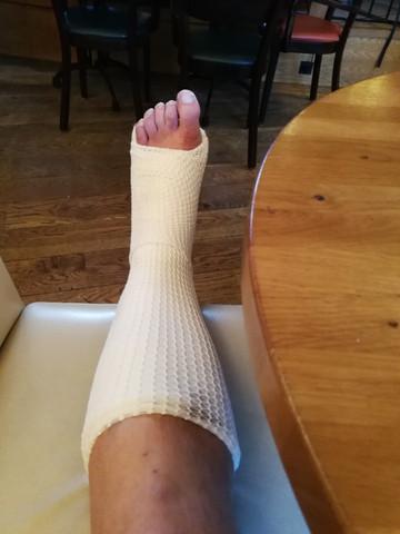 Ist ein Gipsbein mit nackten Zehen Gesellschaftsfähig oder muss der Etikette wegen ein Socken getragen werden?