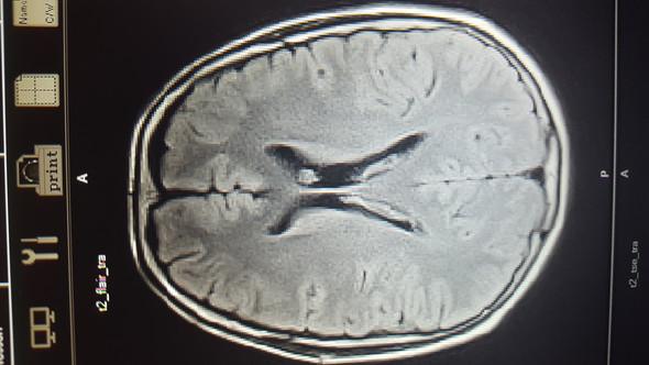 Hier das MRT meines Kopfes an einer für mich verdächtigen Stelle - (Gesundheit, Medizin)