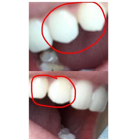 Zähne  - (Zähne, Zahnspange)