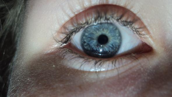 Mein Auge mit relativ viel Licht - (Augen, Augenfarbe)