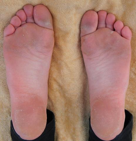 Meine Füße  - (Körper, Beauty)