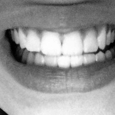 Meine Zähne :D - (Gesundheit, Medizin, Beauty)