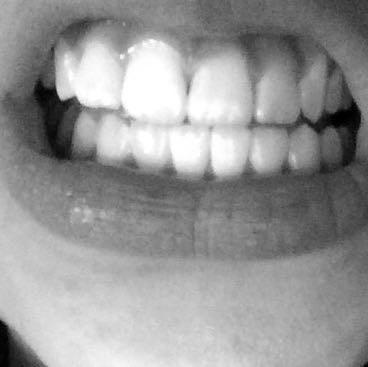 Meine Zähne ;) - (Gesundheit, Medizin, Beauty)