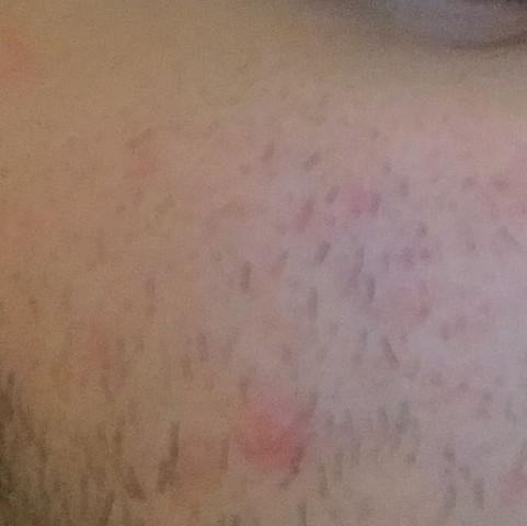 Haare lasern verbrennungen
