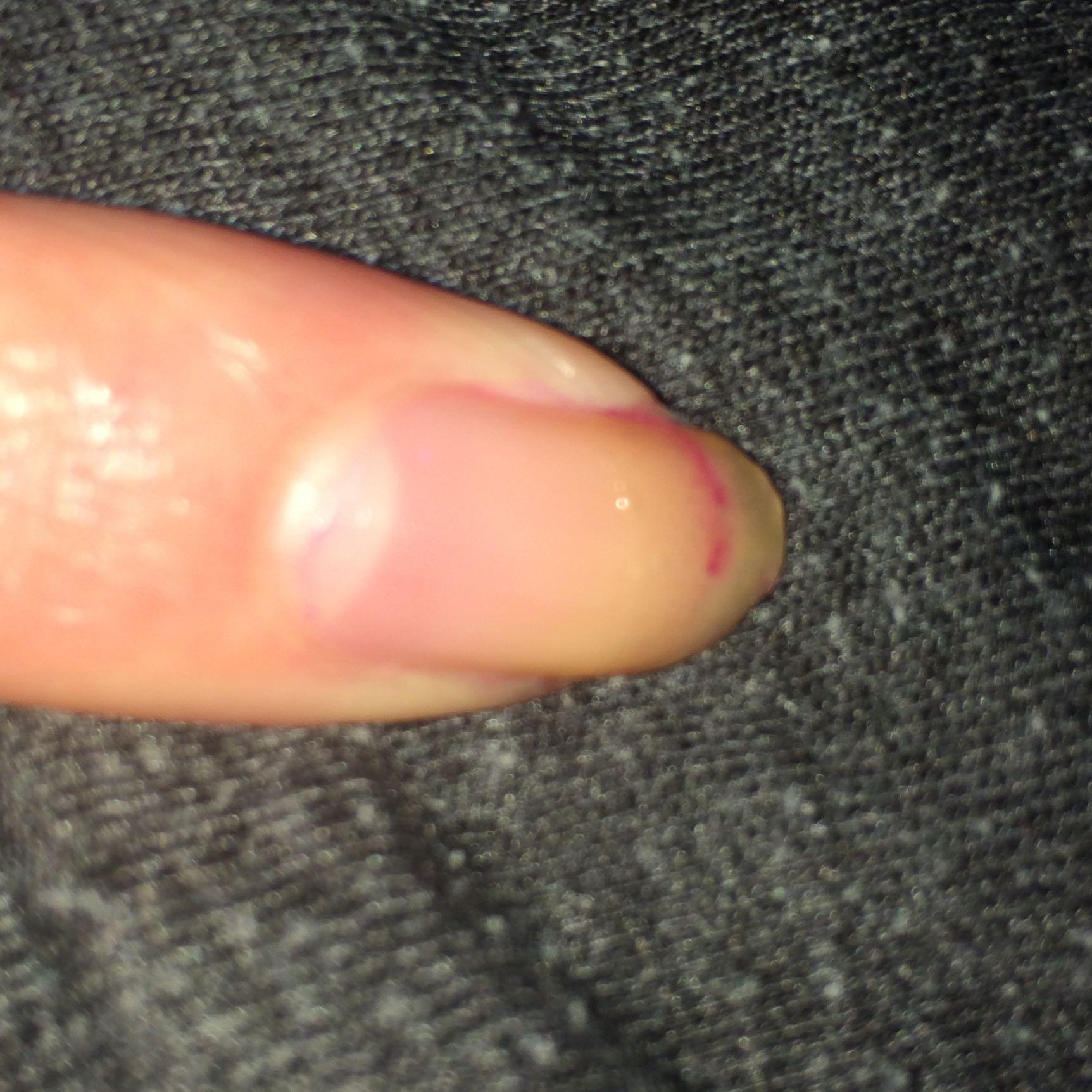 ist im abgebrochenem nagel nagellack schädlich? (nägel)