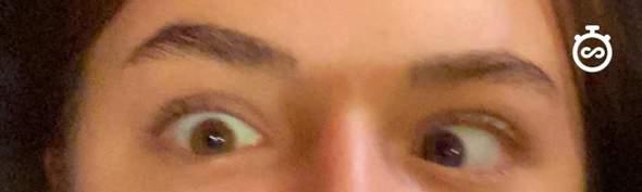 ist komisches Augen schielen normal?