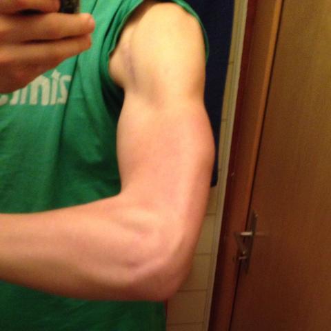 Ist mein Arm normal? (Muskeln, Aufbau) (groß)