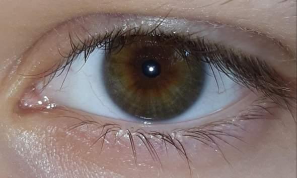 Ist mein Auge hässlich? (Umfrage, Abstimmung, Augen)