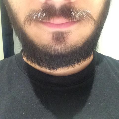 Ist Mein Bart Nicht Dicht Genug Länge Dichte Zwiebel
