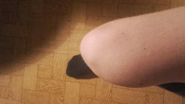 - (Arzt, Beine)