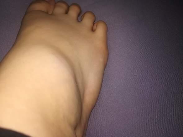 Ist mein Fuß gebrochen bzw. angebrochen?