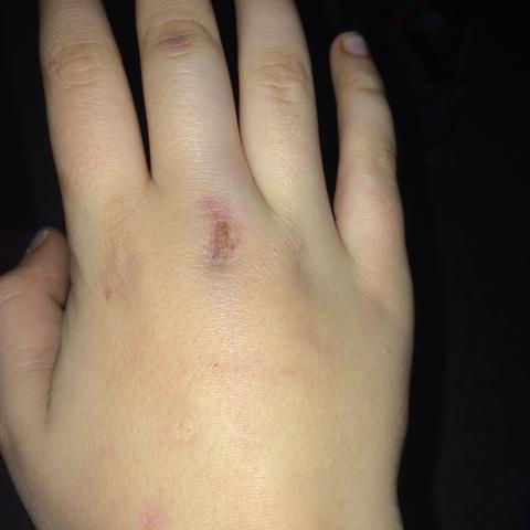 Finger Umgeknickt