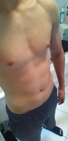 - (Körper, Fitness, Muskeln)