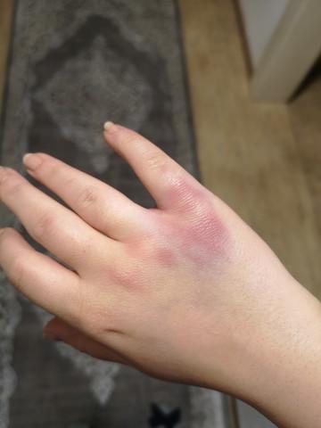 Hand Gebrochen