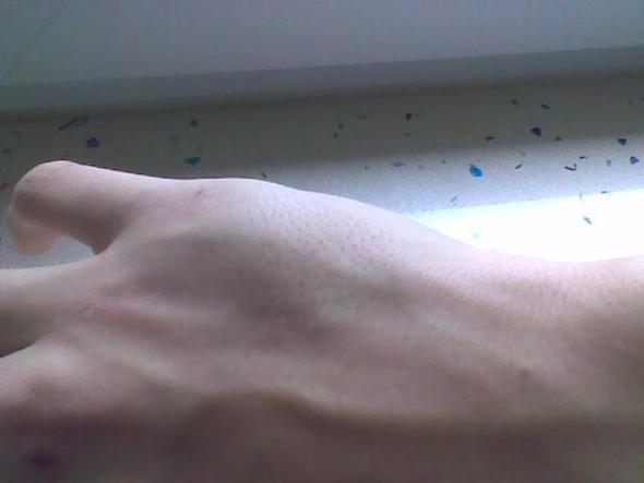 Ist Meine Hand Gebrochen Oder Verstaucht Schmerzen